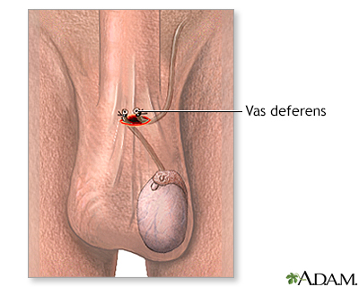 Vasectomy does cum look different after